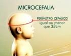 Até o fim do ano, Brasil terá 10 mil casos de microcefalia, projeta Osmar Terra