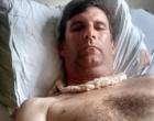 Jornalista alvo de bala perdida em Osório posta foto de sua recuperação